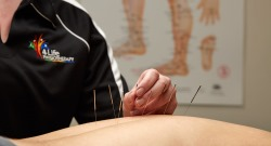 Acupuncture near Mandurah, Meadow Springs, Halls Head, Greenfields