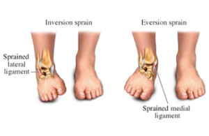 Weak Ankles & Ankle Sprain Information and Treatment Options ...
